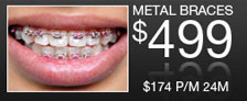 Advanced dental $499 metal braces